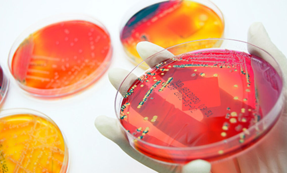Antimicrobial resistance. © Istockphoto